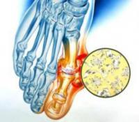 Подагрический (метаболический) артрит