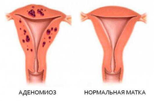 Лечение аденомиоза в пременопаузе
