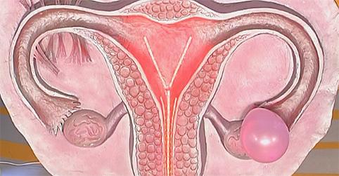 Гинекологические заболевания яичников