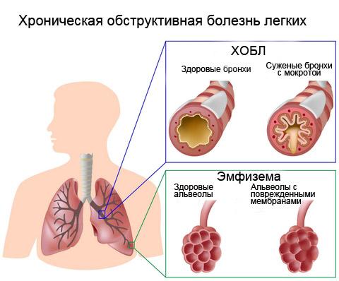 пневмония и простатит