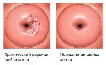 Как вылечить цервицит (воспаление шейки матки)