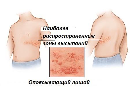 ожирение виды причины последствия биохимия