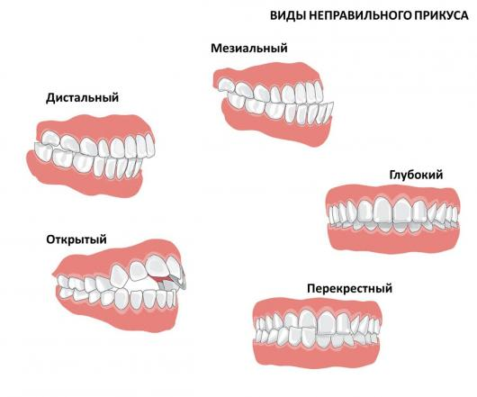 Фото прикусов зубов у детей