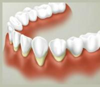 Десны и зубы