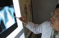 Третья стадия рака лёгкого: симптомы и особенности