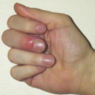 Воспаление на пальце