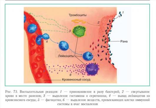 Схема воспаления